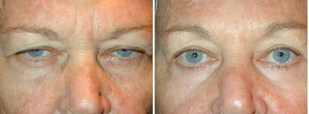Brow Lift in London, Endoscopic Brow Lift in London